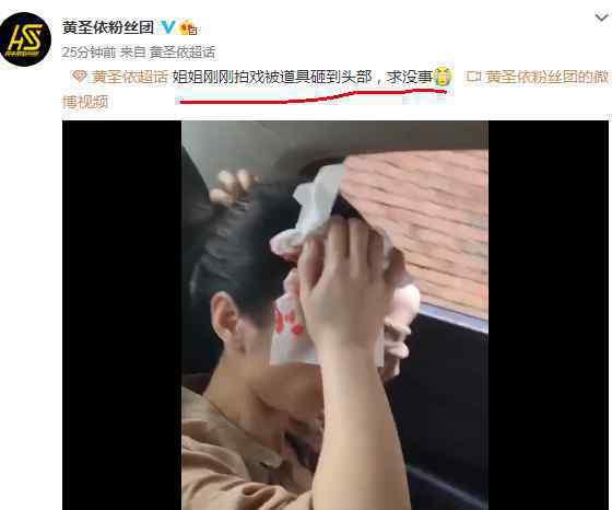 黄圣依拍戏时头部受伤 被道具砸到头血流了