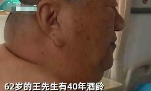 辽宁沈阳大叔40年喝掉8700斤白酒 究竟发生了什么