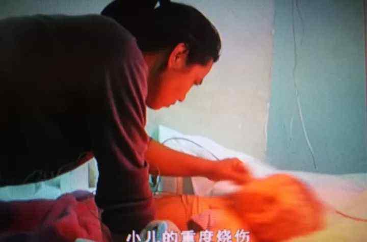 3岁女孩掉进热水锅 奶奶拽住双腿一把捞上来