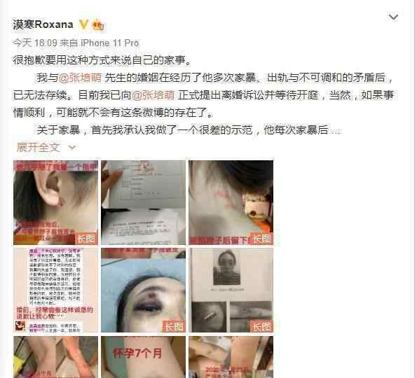 张培萌妻子称只想要女儿抚养权 究竟是怎么回事背后的真相是什么