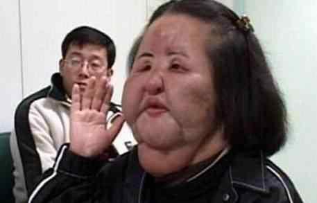 """韩国美女艺人整容成""""电风扇大妈"""",哪些明星整容失败?"""